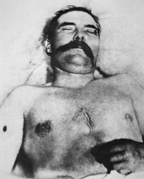 The Body of John Wesley Hardin